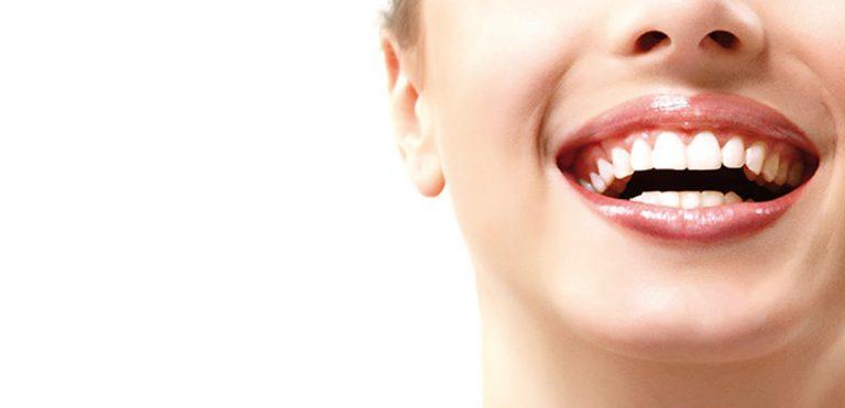 Il Fascino naturale di un nuovo sorriso